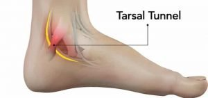 tarsal tunnel syndrome work boots